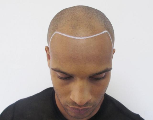 Bald Black Man before Scalp Micropigmentation
