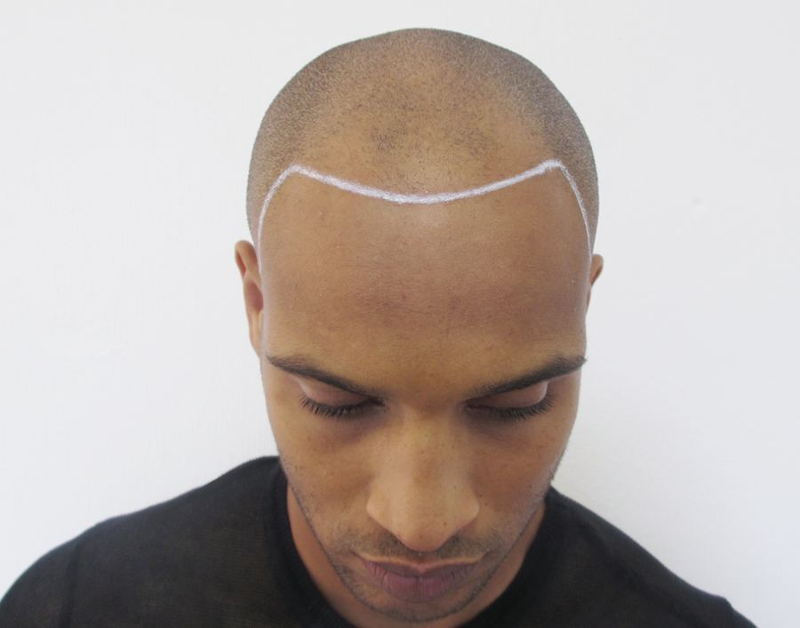 Bald Black Man before Scalp Micropigmentation