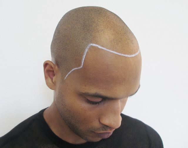 Black Man before Scalp Micropigmentation