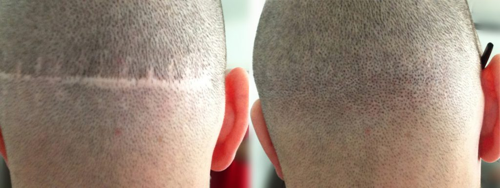 Scalp Micropigmentation treatment for scar coverage