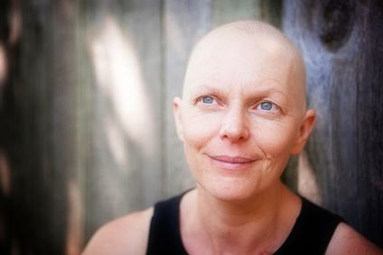 Portrait of a woman balding from cancer treatment smiling and looking up.