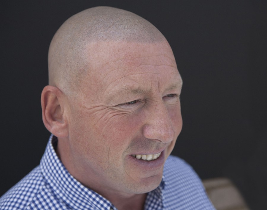 Roy After Hair Loss Cure