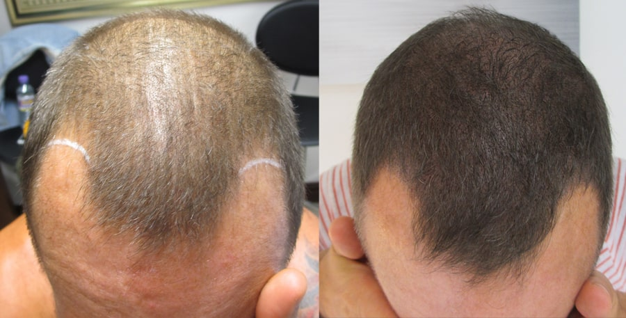 scalp micropigmentation with long hair