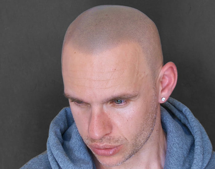 Gerbeshi after Scalp Micropigmentation 2