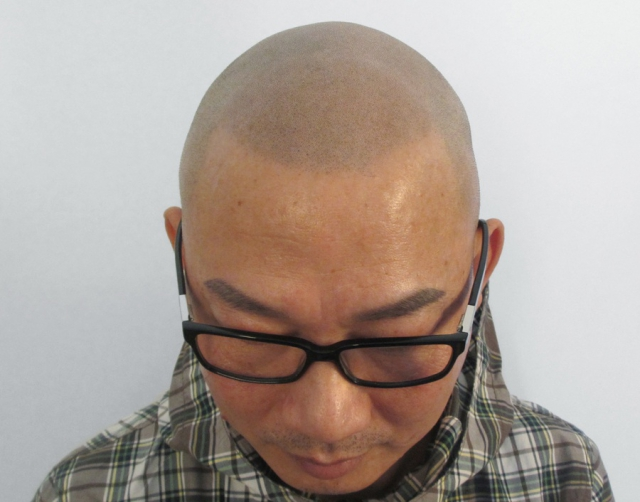 Asian Man with Scalp Micropigmentation