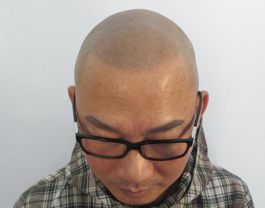 Asian Man with Scalp Micropigmentation