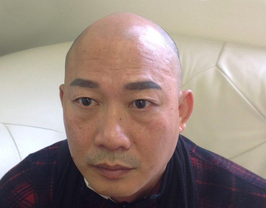 Thim Bald Asian Man