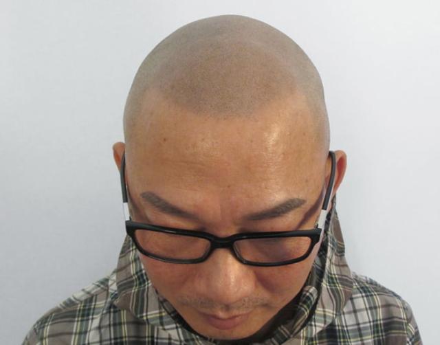 Thim After Scalp Micropigmentation