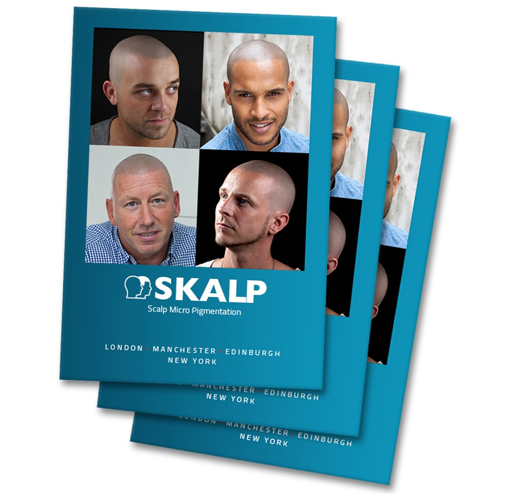 Informative Scalp Micropigmentation Brochure