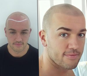 women love bald guys