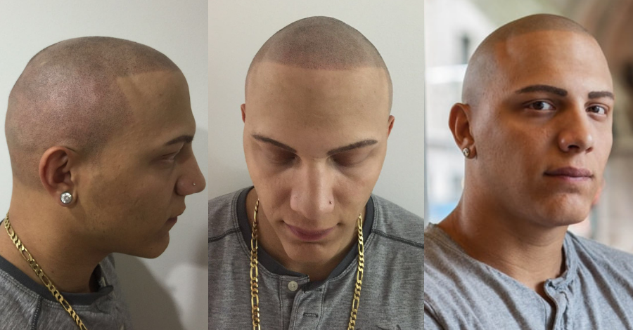 alopecia after smp treatment