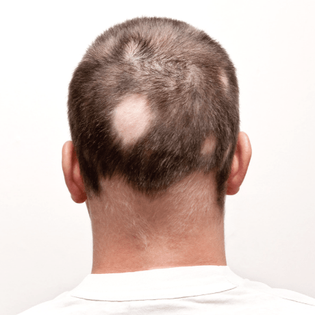 alopecia areata bald patches mans head