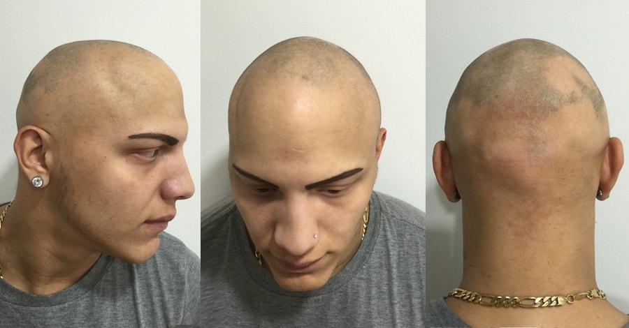 alopecia areata before treatment