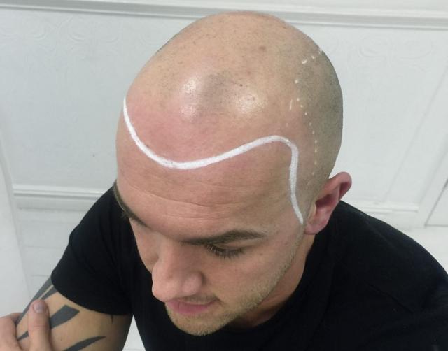Michael before Scalp Micropigmentation
