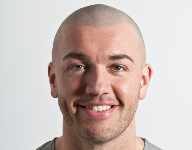 Michael Best Scalp Micropigmentation result