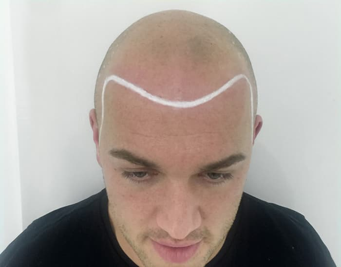 Michael Before Scalp Micropigmentation