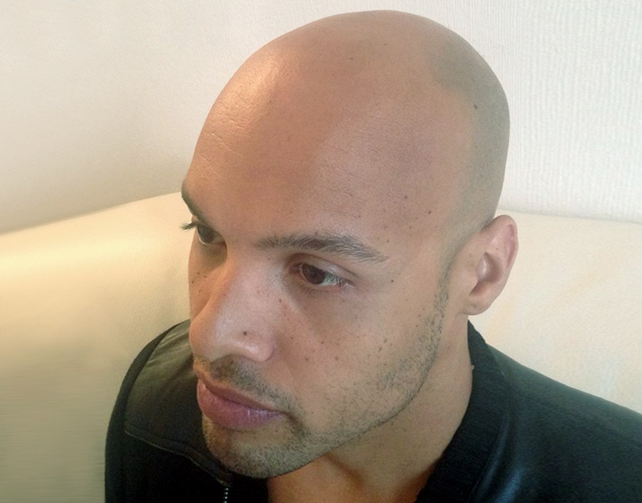 Tristan Before Scalp Micropigmentation