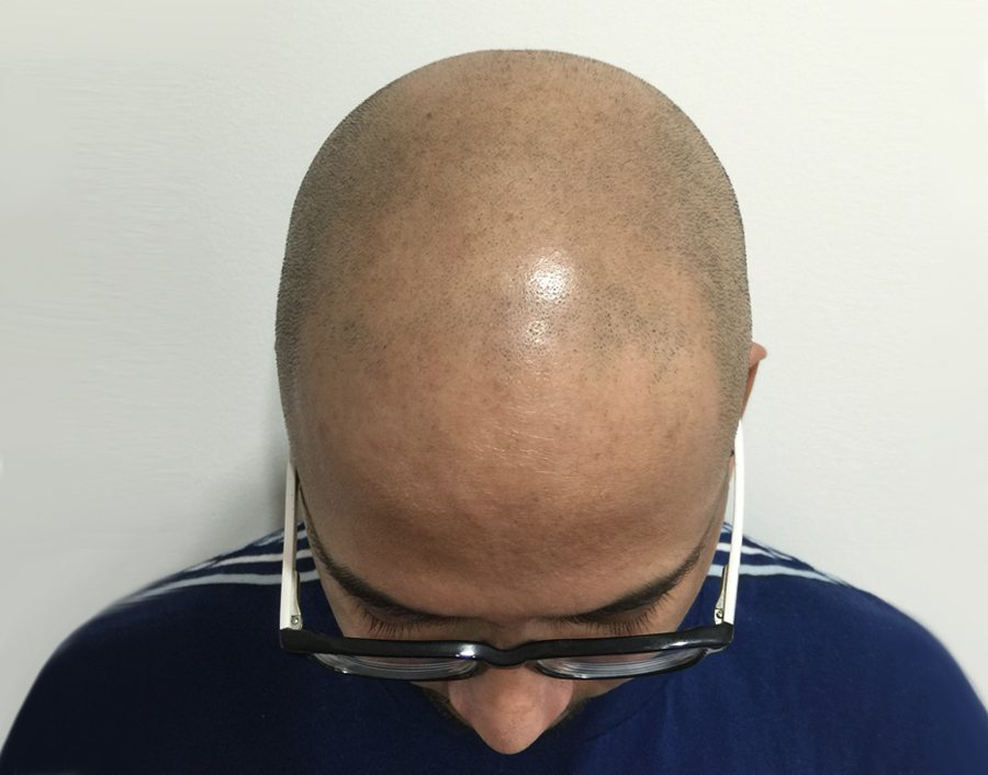 Prem Before Scalp Micropigmentation
