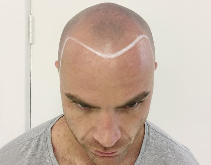 Tom Before Scalp Micropigmentation 2