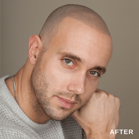 scalp micro pigmentation is a non surgical hair restoration treatment photo after SMP