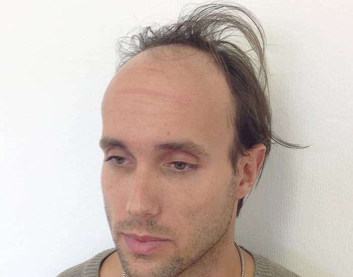 Tony Before Scalp Micropigmentation