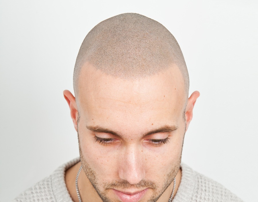 Tony after scalp micropigmentation hair tattoo