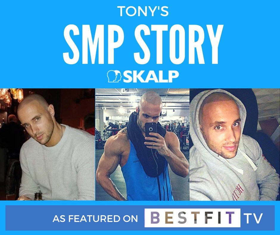 tony skalp transformation story as featured on best fit tv