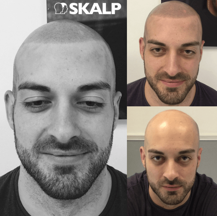 Richard before and after scalp treatment