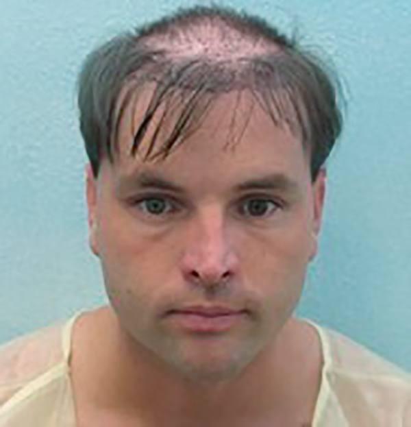 man with bad hair transplant , hair transplant vs SMP