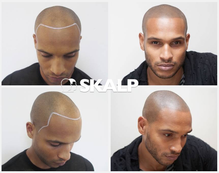 Lloyd Scalp Micro pigmentation results- rocking the smp look!