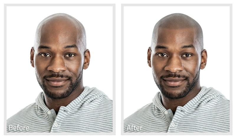 Virtual Hairline Sharp