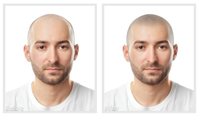 Virtual Hairline Soft
