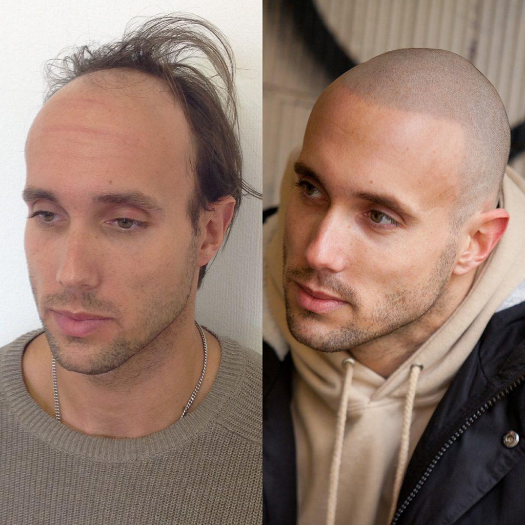 a shiny scalp is a big problem among bald men