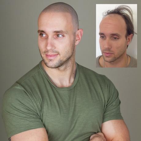 Non-Surgical Hairline Restoration   Hair Transplant News   Skalp®