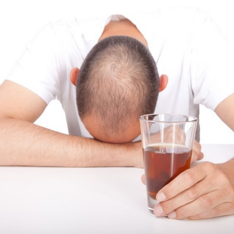 Depressed man with hair loss, bald head and drinking