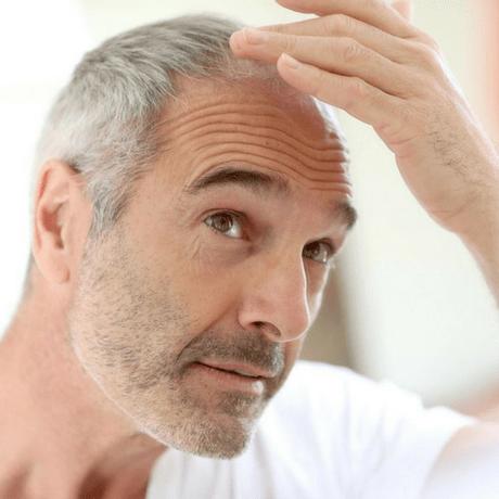 Caduta dei capelli donne periodo delle castagne