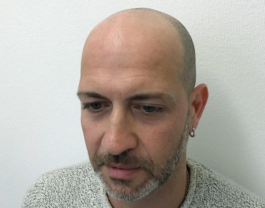Antonio Before Scalp Micropigmentation 2