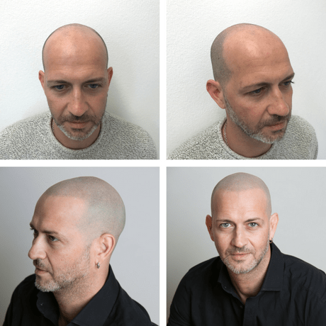 hair transplant alternatives 2017