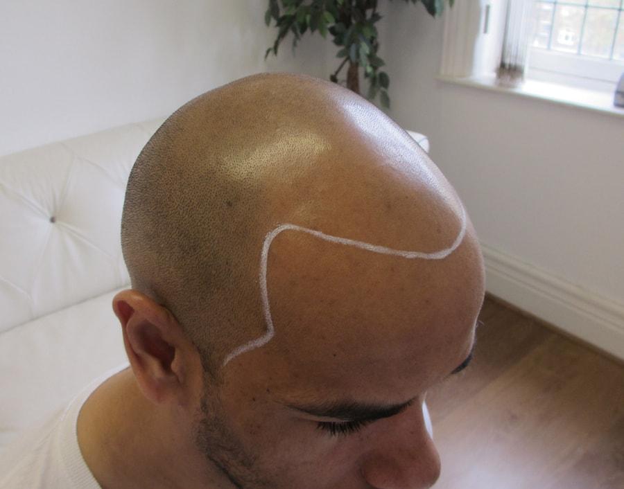 Dan Before Scalp Micropigmentation 2