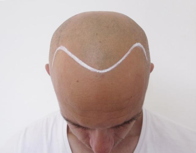 Gerbeshi Before Scalp Micropigmentation 1