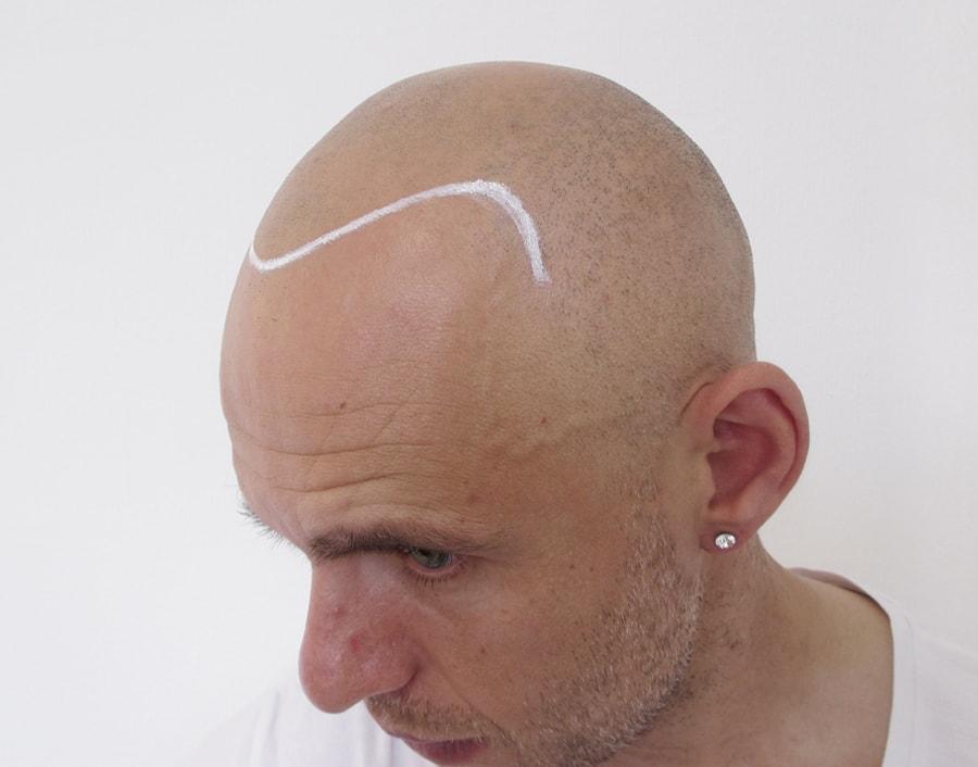 Gerbeshi Before Scalp Micropigmentation 2
