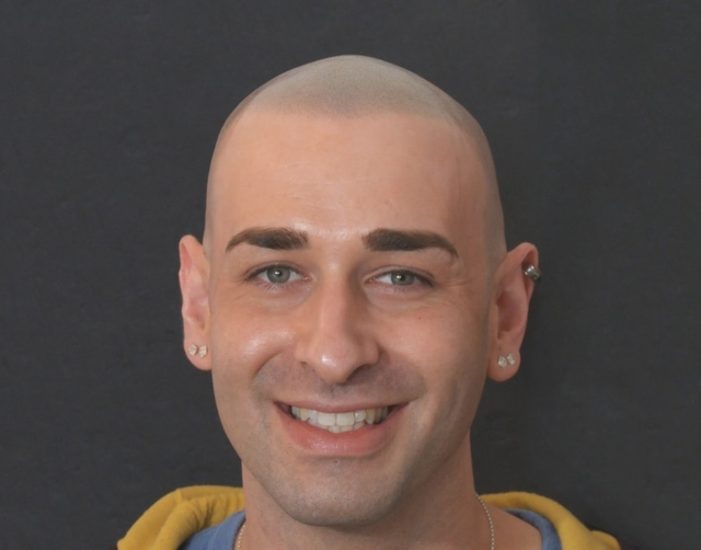 Joe After Scalp Micropigmentation 1