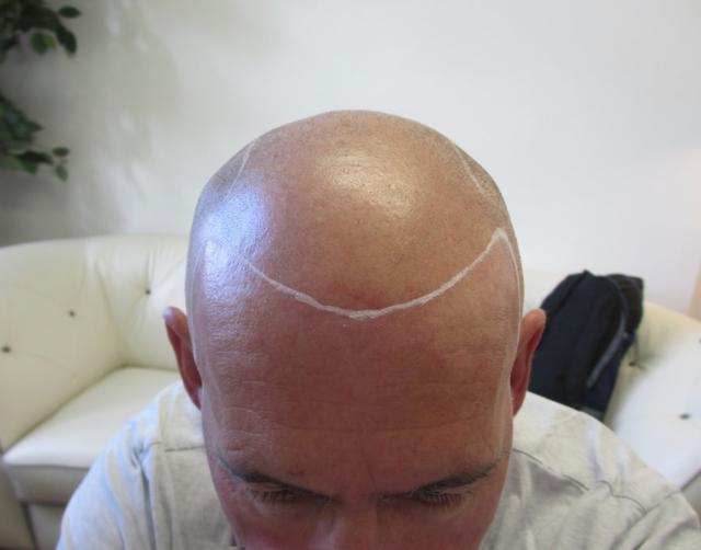 Les Before Scalp Micropigmentation 1