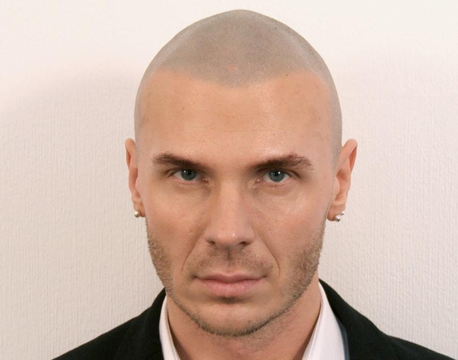 Marcin After Scalp Micropigmentation 1