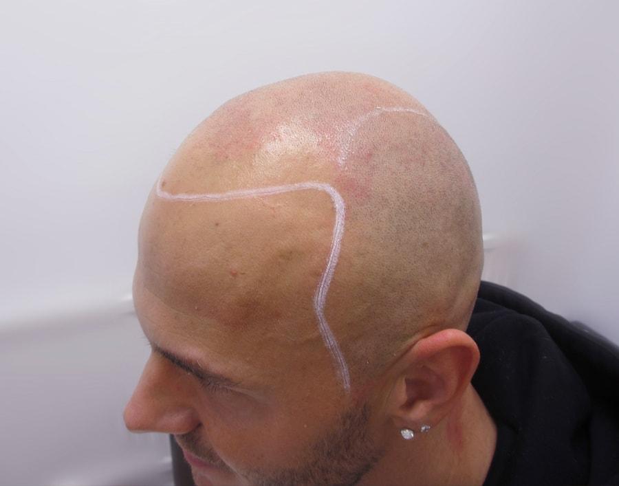 Marcin Before Scalp Micropigmentation 2