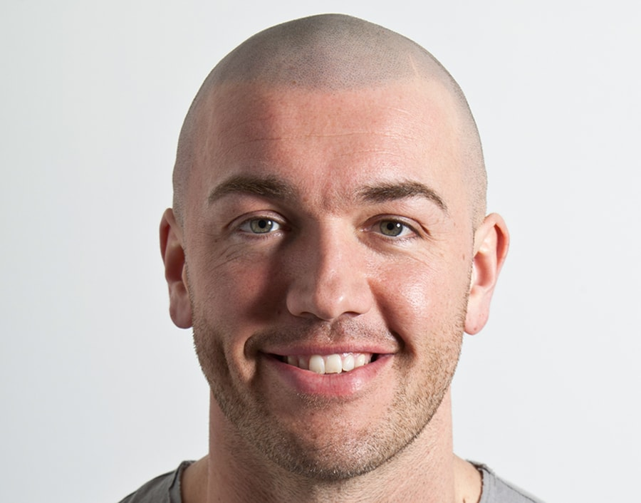 Mike Wil After Scalp Micropigmentation 1