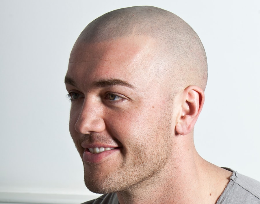 Mike Wil After Scalp Micropigmentation 2