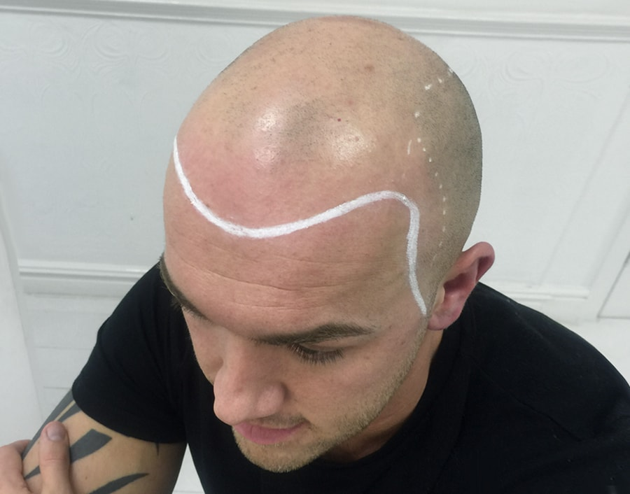 Mike Wil Before Scalp Micropigmentation 2