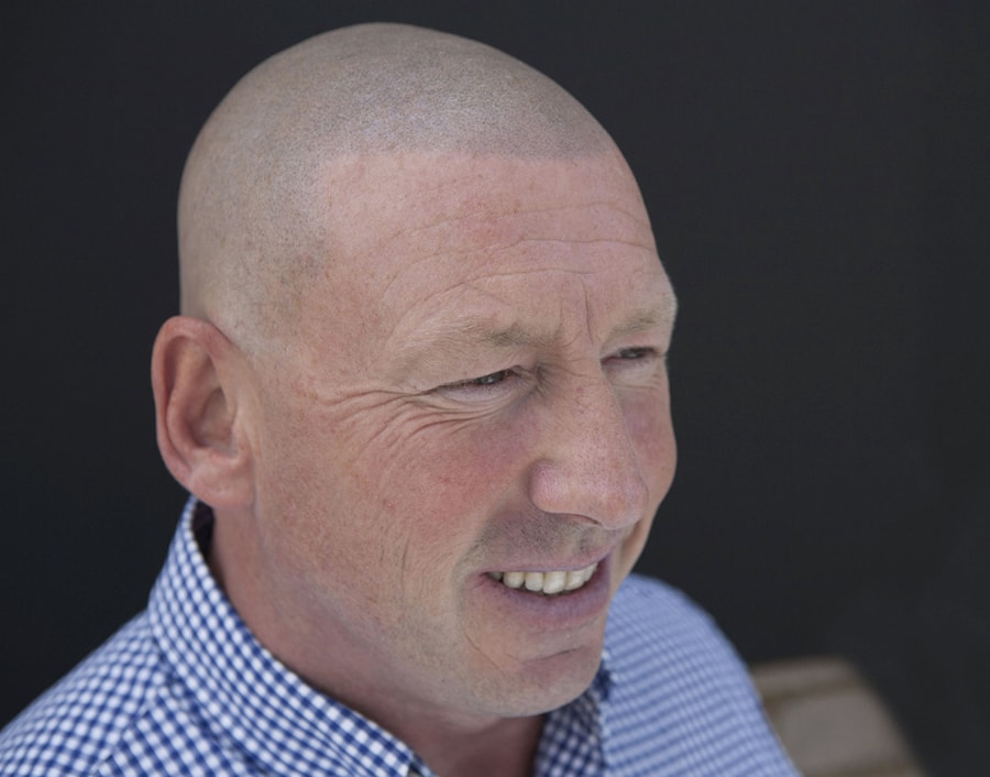 Roy After Scalp Micropigmentation 2