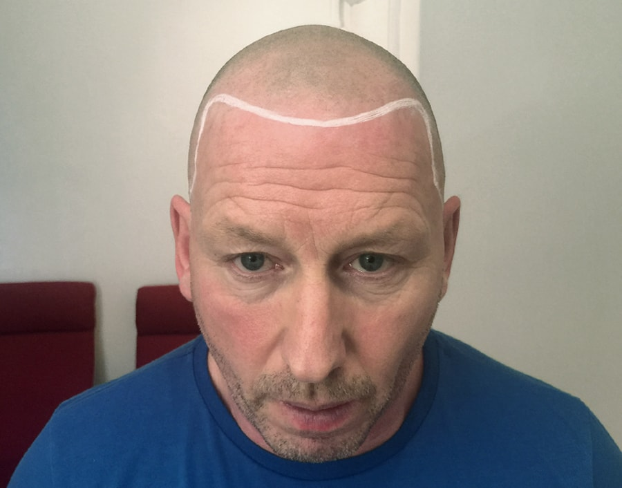 Roy Before Scalp Micropigmentation 1